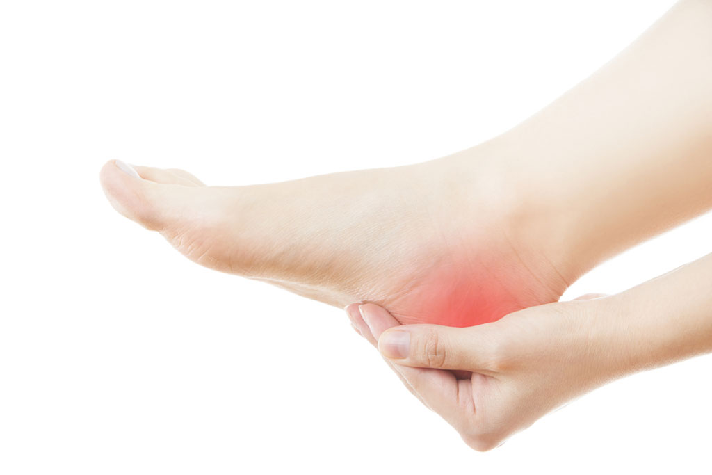 Heel Pain: How to treat Plantar Fasciitis - Sum of Us on planters warts, planters phasiatis com, planters facetious treatment of symptoms, planters feet pain,